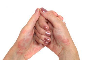 Outubro é o mês da Campanha Nacional de Conscientização da Psoríase da Sociedade Brasileira de Dermatologia