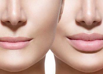 Saiba mais sobre o preenchimento de lábios