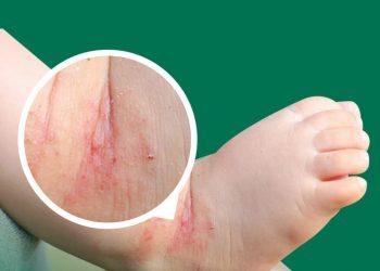 Dermatite atópica em crianças: como identificar